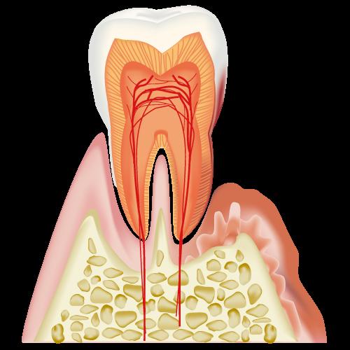 痛い コロナ 歯 が